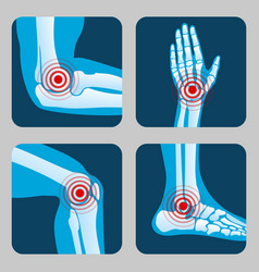 Human joints with pain rings arthritis and vector