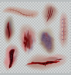 Realistic wounds scars surgical stitches and vector