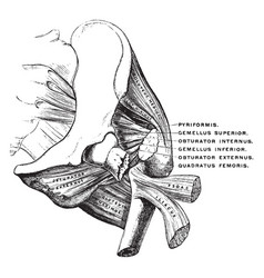 Fractured femur vintage vector