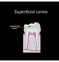 Home tooth caries on a black vector