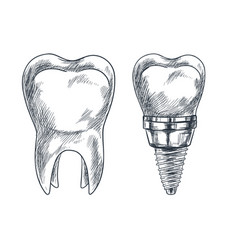 Molar tooth and implant prothesis sketch vector