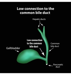 Low connection to the common bile duct Pathology vector