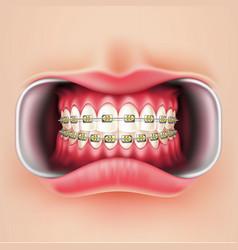 Dental braces oral brakets system 3d vector