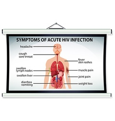 Chart showing symptoms of acute HIV infection vector