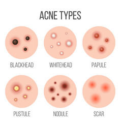 Creative types of acne vector