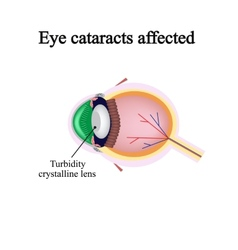 The structure of the eye Eye cataracts affected vector