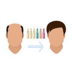 Male hair loss treatment before and after stages vector