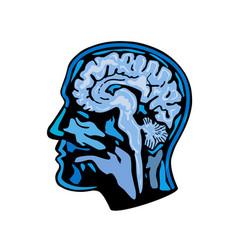 Brain scanning imaging side vector