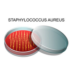 staphylococcus aureusv vector image vector image