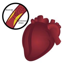 Blood clot cholesterol plaque i heart attack vector