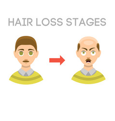 information chart of hair loss stages types of vector image