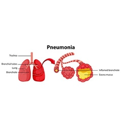 Diagram showing lung with pneumonia vector