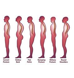 Skeleton spine posture vector
