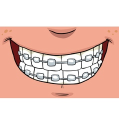 teeth with braces vector image