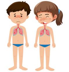 Sick boy and girl with coronavirus on white vector