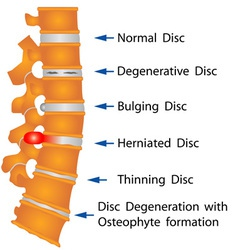 Spine conditions vector image