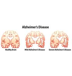 Alzheimers disease vector