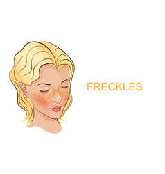 A face with freckles young women vector