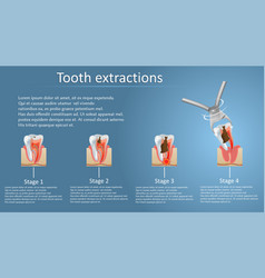 Tooth extraction concept poster banner vector