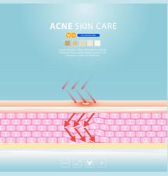 Acne skin spot pimple problem design vector