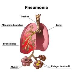 Pneumonia vector