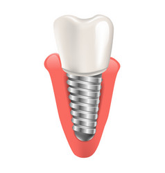 Realistic tooth implant in 3d graphic vector