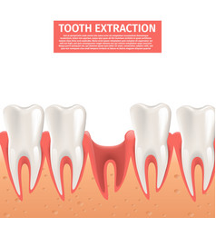 Realistic tooth extraction 3d vector