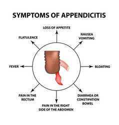 Symptoms of appendicitis inflammation appendix vector