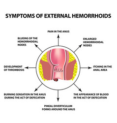 Symptoms of external hemorrhoids vector