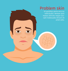 Young man face dry skin problem vector