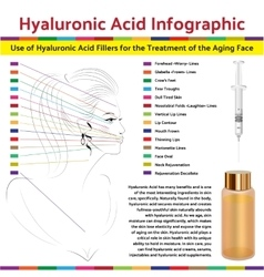 Hyaluronic asid infographic face plastic surgery vector