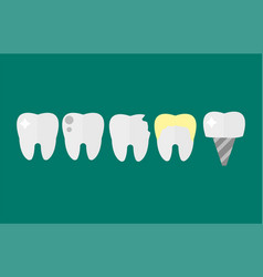 flat health care dentist tooth implants research vector image