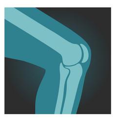 x-ray shot knee human body bones leg vector image
