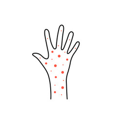 linear hand with rash or psoriasis vector image
