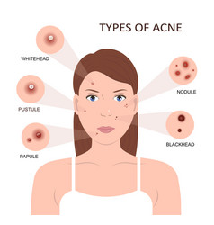 types acne woman with pimples vector image