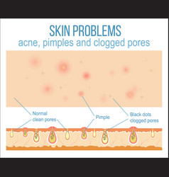 Skin and pores vector