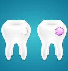 Diamonds in human teeth vector