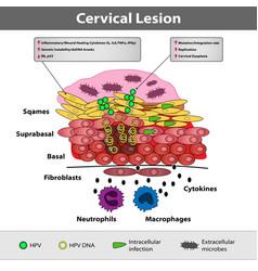 A precancerous cervical lesion abnormal cervical vector
