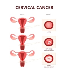 Cervical cancer schematic vector
