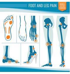 foot and leg pain arthritis and rheumatism vector image