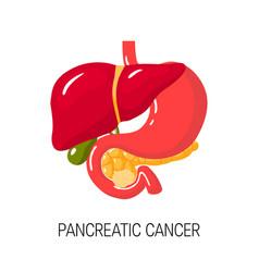 Pancreatic cancer concept vector
