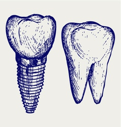 Tooth implant and molar vector image