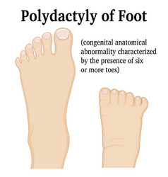 Polydactyly of foot vector