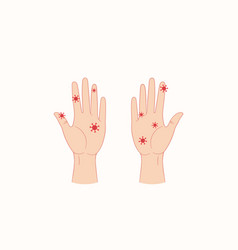 virus on humans hands flat style vector image