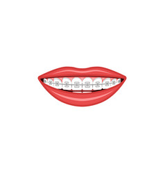 Wide female smile with teeth and braces sign vector