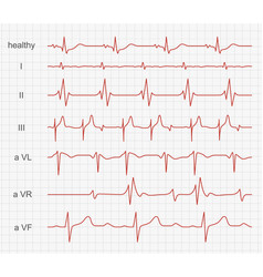 cardiogram heart red rhythm on monitor screen vector image