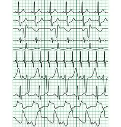 Cardiogram vector image