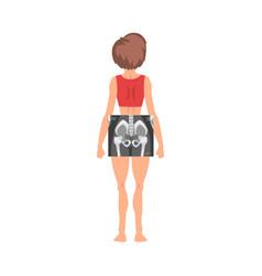 Female thigh bone back view roentgen vector