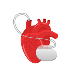 pacemaker - human heart and cardio implant vector image