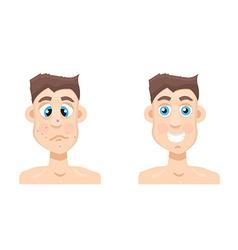 acne man vector image
